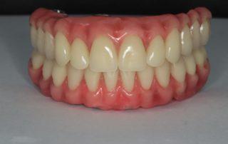 Beneficios da protese dentaria tipo protocolo dra laise cunha